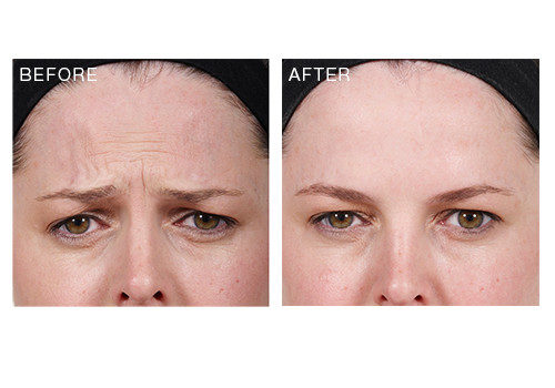 Anti-Wrinkle Injections – Frown Lines