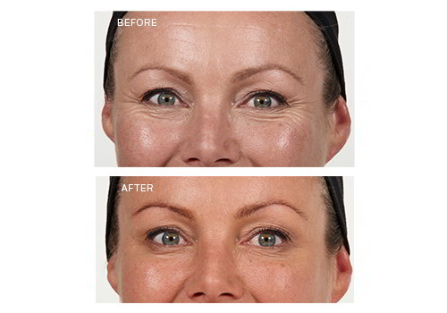 Best anti wrinkle day cream erfahrungen fandeluxe Image collections