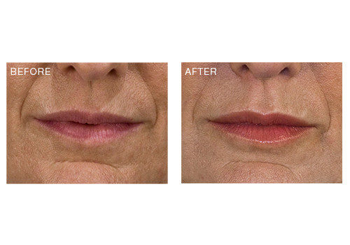 Dermal Fillers – Lips & Nasolabials