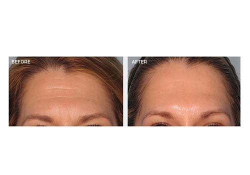 Anti-Wrinkle Injections – Forehead Lines