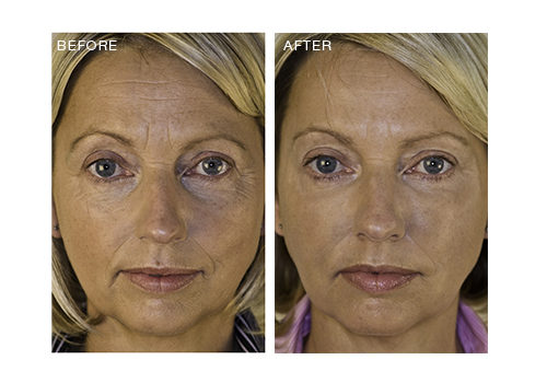 Total Face – Woman